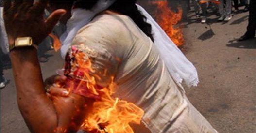 देखें कैसे मोदी का पुतला फूंकने में खुद ही जल गई कांग्रेस की महिला कार्यकर्ता