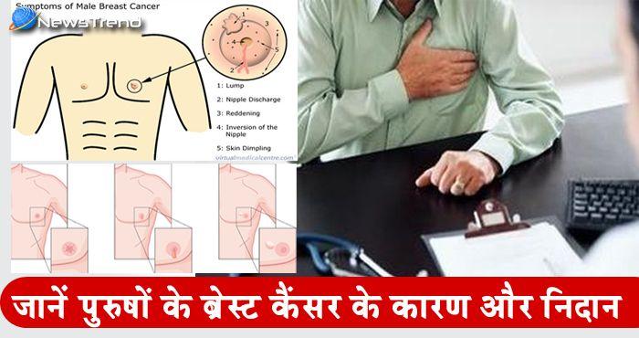 मर्दो को भी हो सकता है ब्रेस्ट कैंसर का खतरा इस के लक्षण और निदान जान लीजिये .