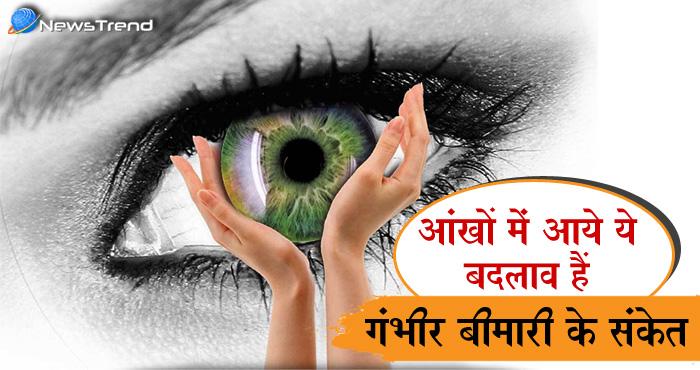 आंखों में नज़र आए ये 7 चेंजेज़ तो हो जाएं सावधान, हो सकती है गंभीर बीमारी