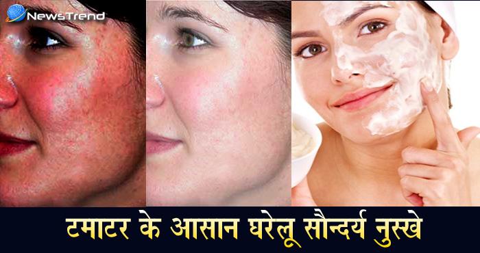 अब महंगे ब्यूटी प्रोडक्ट्स जाइये भूल, सिर्फ 3 बार में चेहरे पर इस्तेमाल कर पाएं गोरी निखरी त्वचा