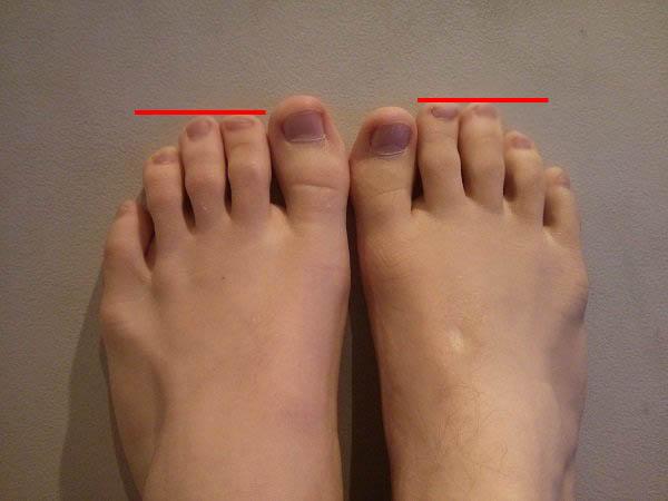 hammer toes symptoms - HD3264×2448