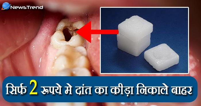 VIDEO: अब मात्र दो रूपये में निकाल सकते हैं आप दांतों में लगा कीड़ा, जानिए कैसे