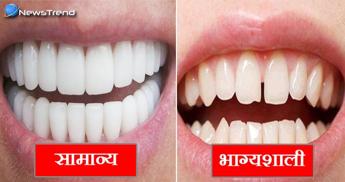 दांतों के बीच में है गैप, तो आप हैं भाग्यशाली.. जानिए अपनी खूबियां
