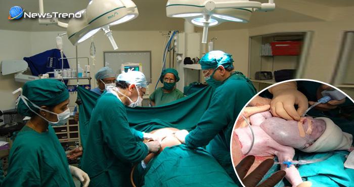 डॉक्टरों ने कर दिखाया हैरतअंगेज कारनामा, अधजन्मे बच्चे को बचाने के लिए कर डाला ये काम
