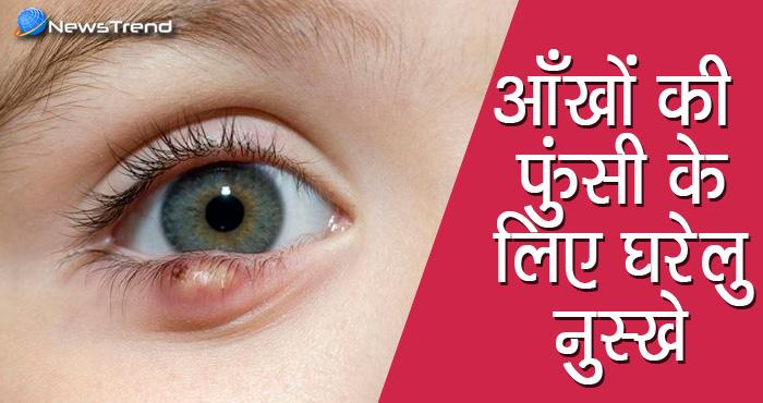 आंखों की फुंसी से निजात दिलाते हैं ये घरेलु उपाय, आजमाकर देखिए