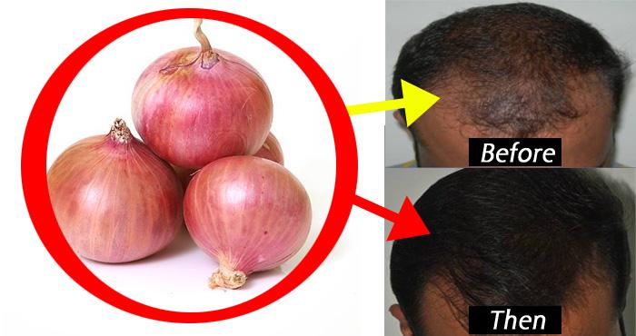 बाल झड़ने की समस्या से हैं परेशान? अपनाएं इस एक ट्रिक को, हो जायेगा कमाल