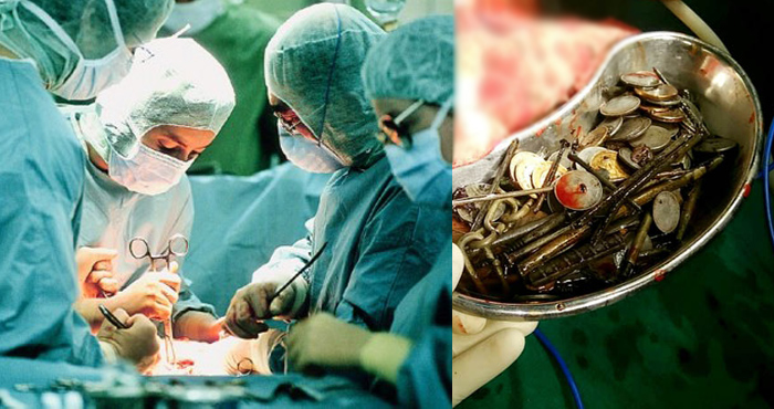 पेट दर्द से पीड़ित था व्यक्ति, डॉक्टरों ने किया ऑपरेशन तो निकली ऐसी चीज़ें जान कर रह जाएंगे दंग