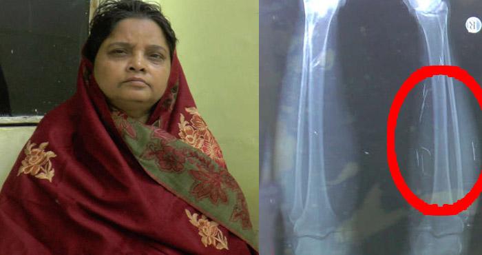 32 सालों से शरीर में 22 सुईयों को लेकर चल रही है ये महिला , X-RAY देख डॉक्टर्स भी है हैरान!