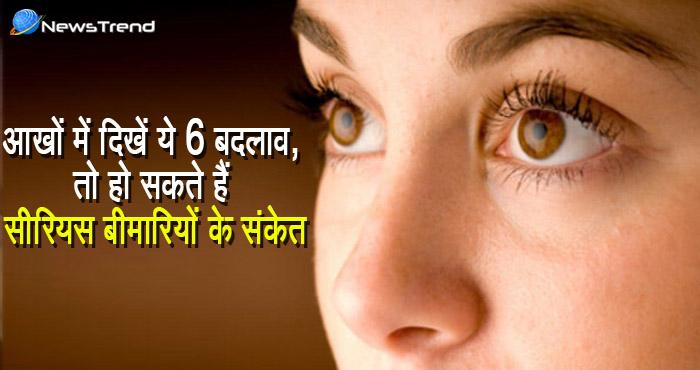 आँखों की बिमारी | आपकी आँखों में भी होने लगे 6 परिवर्तन तो समझ जाइये है बीमारी