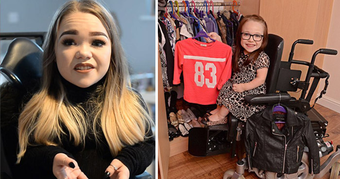 ब्रिटेन की सबसे छोटी महिला ने बतायी अपने जीवन की दर्दभरी कहानी, हर दिन सहना पड़ता है भयानक दर्द