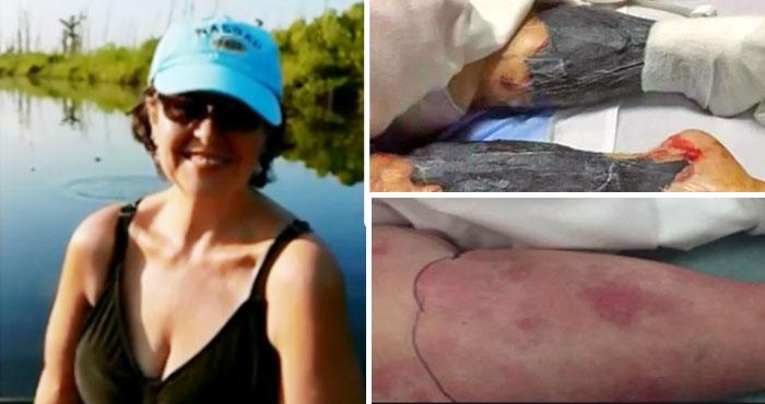 महिला ने जिन्दा खाया इस चीज को फिर धीरे-धीरे गलने लगे हाथ-पैर, मात्र 48 घंटों में हो गयी ऐसी हालत