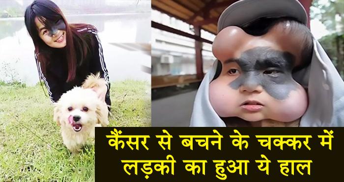 कैंसर से बचाने के लिए डॉक्टरों ने लड़की के चेहरे में लगा दिए 4 गुब्बारे, हो गया ऐसा हाल – देखिए वीडियो