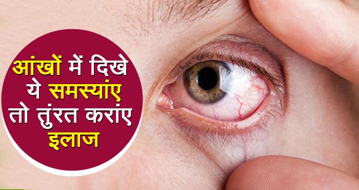 सावधान! आंखों की ये समस्याएं बन रही हैं मौत की वजह, समय रहते करें बचाव