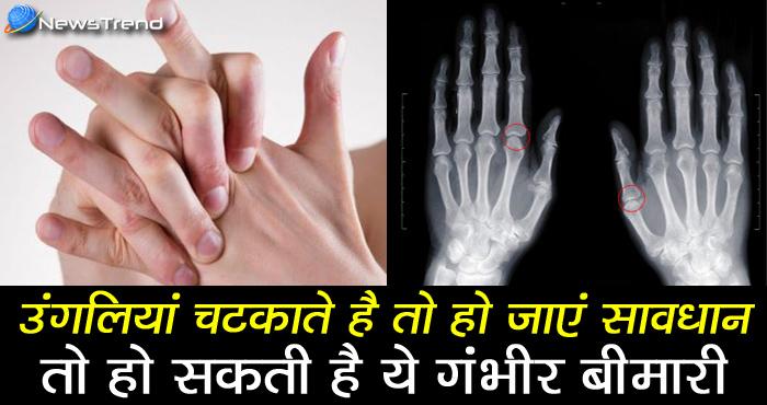 यदि आपको भी उंगलियां चटकाने की आदत है तो हो जाएं सावधान, हो सकती है ये गंभीर बीमारी