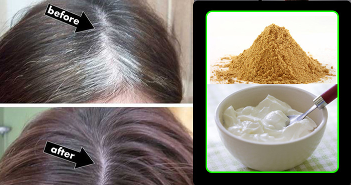 सफेद बालों से छुटकारा पाने के उपाय