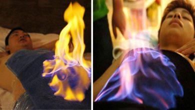 Photo of जलाकर भी कोई भला इलाज करता है क्या? लेकिन यहाँ इलाज के लिए लगा दी जाती है शरीर पर आग, जानें