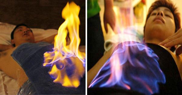 आग से इलाज, इलाज के लिए लगा दी जाती है शरीर पर आग