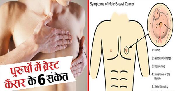 पुरुषों को भी हो सकता है ब्रेस्ट कैंसर