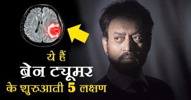 इरफान खान को हुआ ब्रेन ट्यूमर, बचने के लिए आप भी इन लक्षणों को न करें नजरअंदाज, अभिनेता इरफान खान की बीमारी को लेकर कई चर्चाएं चल रही हैं। बीमारी के बारे में इरफान खान ने एक ट्वीट करके बताया था। लेकिन बीमारी के बारे में खुलासा नहीं किया। वहीं मीडिया की ख़बरों के मुताबिक इरफान खान को ब्रेन ट्यूमर हुआ है..