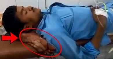 इंसानियत एक बार फिर हुई शर्मसार, डॉक्टरों ने मरीज के कटे हुए पैर को ही बना दिया उसका तकिया