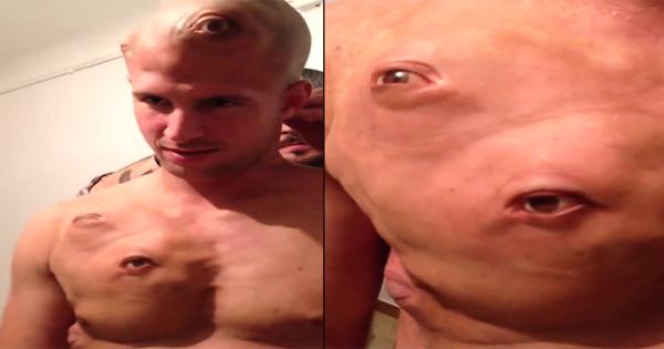 इस आदमी के चेहरे में ही नहीं पूरे शरीर में हैं आँखे ही आँखें, देखें वीडियो