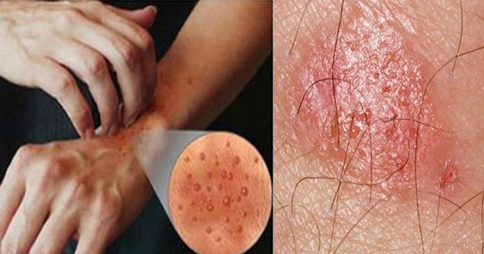 ये उपाय आपको दिला सकते हैं त्वचा संबंधित रोगों से हमेशा के लिए छुटकारा, जानें कैसे?