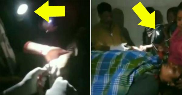 टॉर्च जलाकर ऑपरेशन, डॉक्टर ने Torch की रौशनी से कर डाला महिला का ऑपरेशन
