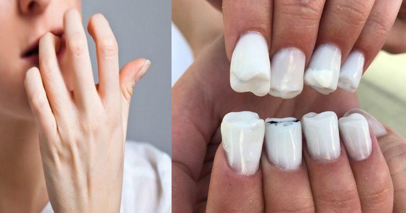 OMG: इस लड़की के नाखूनों में उग रहे हैं दांत, ऐसी तस्वीरें पहले नहीं होगी देखी