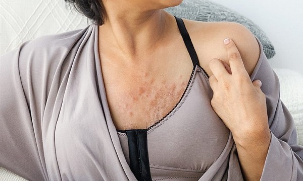 breast par khujli hone ki wazah