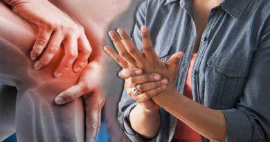आर्थराइटिस के लक्षण, आर्थराइटिस का इलाज और दवा, ऐसे कर सकते हैं आर्थराइटिस बिमारी से बचाव , arthritis in hindi, arthritis ki dawa aur ilaj