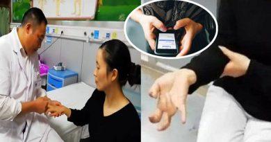 7 दिनों तक मोबाइल से चिपकी रही महिला, उसके बाद उसके हाथों का जो हाल हुआ वो....