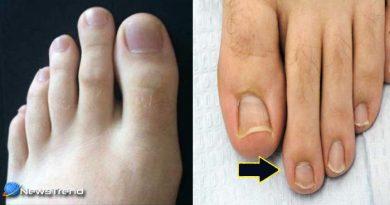आपके पैर की दूसरी उंगली भी है बड़ी तो आज ही जान लीजिये ये बातें, वरना पड़ सकता है पछताना