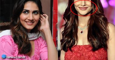 before and after photos of Vaani Kapoor which proves lips surgery a disaster