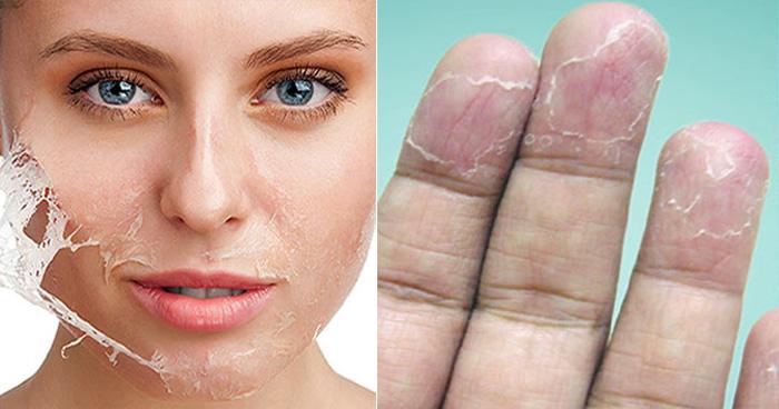 क्यों होती है सर्दी में त्वचा इतनी रूखी ? जानिए इसकी वजह और रोकने के अचूक उपाय