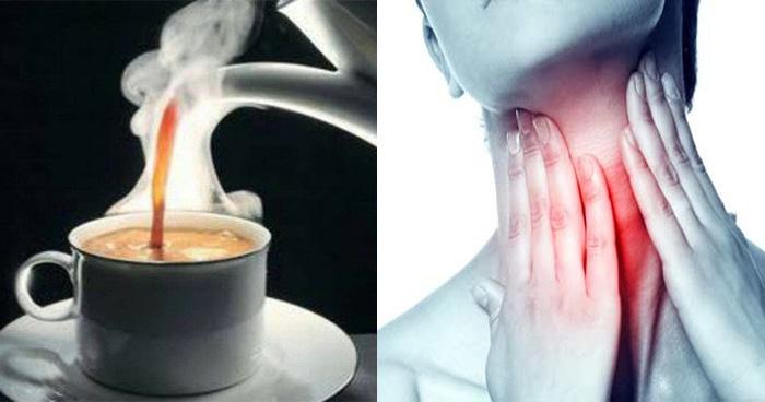 गरमा गर्म चाय पीने से हो सकती है ये खतरनाक बीमारी, आपको भी है ये आदत तो आज ही बदल डालें