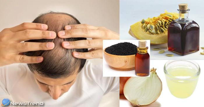 गंजेपन के रामबाण इलाज हैं ये घरेलू नुस्खे, बालों के झड़ने से परेशान व्यक्ति को जरूर अपनाना चाहिए
