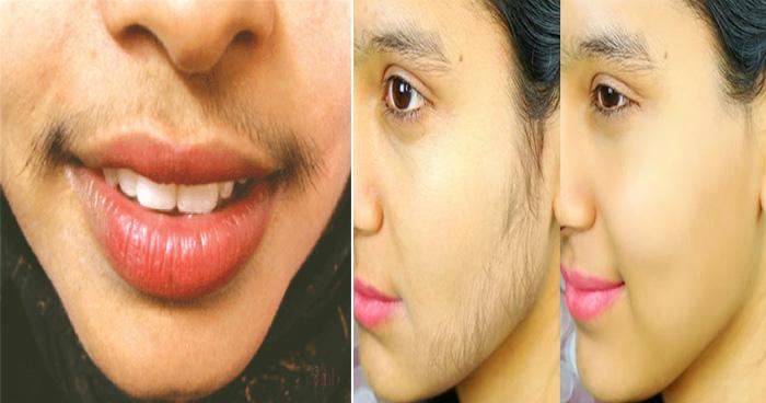 लड़कियों को क्यों होती है होठों के ऊपर बाल की समस्या, जानें कैसे कर सकती हैं इसका घरेलू इलाज