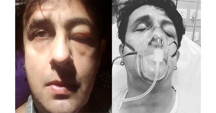 Photo of मशहूर सिंगर सोनू निगम आईसीयू में हुए भर्ती, इस गंभीर बीमारी की वजह से जाना पड़ा अस्पताल