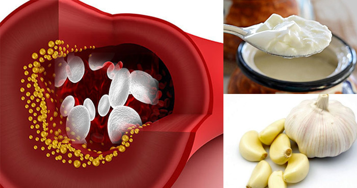 व्हाइट ब्लड सेल्स की कमी को दूर करना है तो खाएं ये पांच चीजें