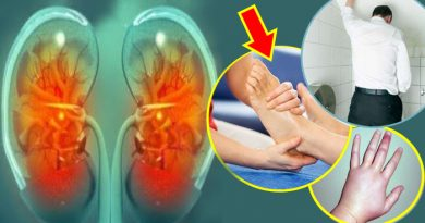अगर शरीर में दिखें ये 6 लक्षण तो हो जाएं सावधान, किडनी खराब होने के हैं आसार