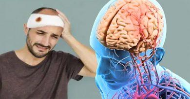 सिर पर चोट लगने लगने से नहीं बल्कि इन कारणों से जाती है याद्दाश्त, जानिए इसके बचाव