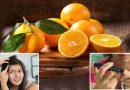 संतरे के फायदे हैं बेमिसाल, आइये जानते हैं इसके फायदे