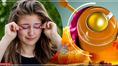 home-remedies-waterline-itching