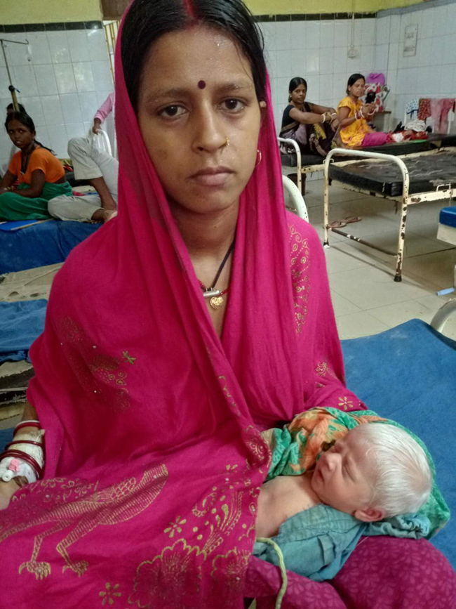 small-white-colour-child-born-in-bhagalpur-relatives-took-selfies
